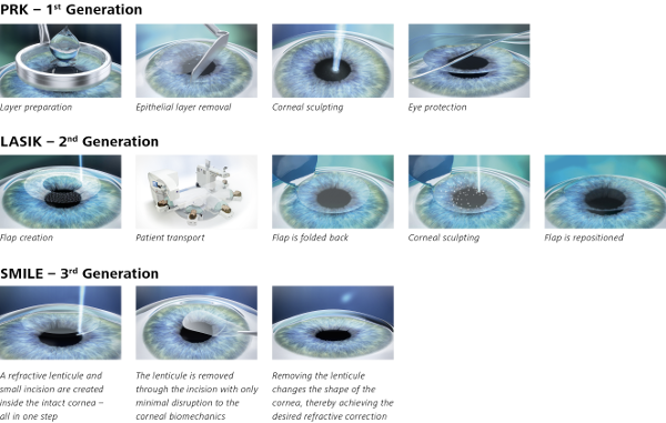 Image Showing The Difference Between PRK, LASIK and SMILE Laser Eye Surgeries