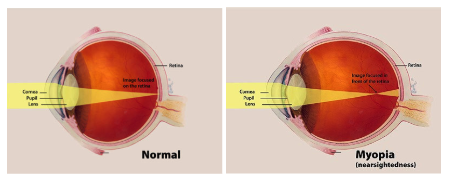 Comparison Of A Normal Eye v An Eye With Myopia