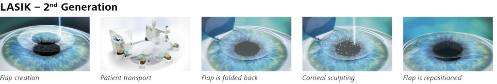 Steps of LASIK laser eye surgery