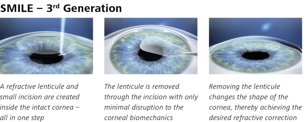 Steps to SMILE laser eye surgery