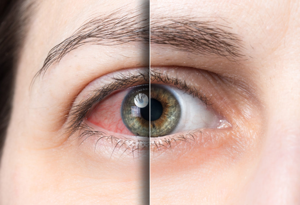 irritated eye before and after
