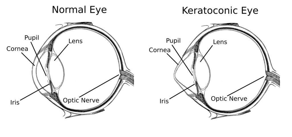 normal cornea vs keratoconic cornea